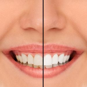 Teeth Whitening in Hornsby NSW | Dr Ben Dunster Family Dentistry